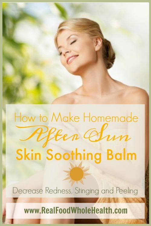 After Sun Skin Balm